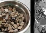 أطباء يعثرون على 2 كيلوغرام من الحجارة داخل معدة المريض!