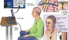 تطوير طريقة جديدة لربط العقول البشرية بالكمبيوتر عبر الأوردة